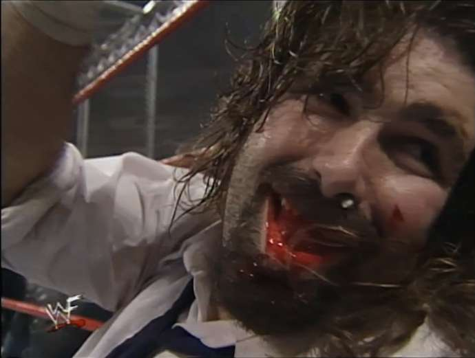 Foley Tooth HIAC